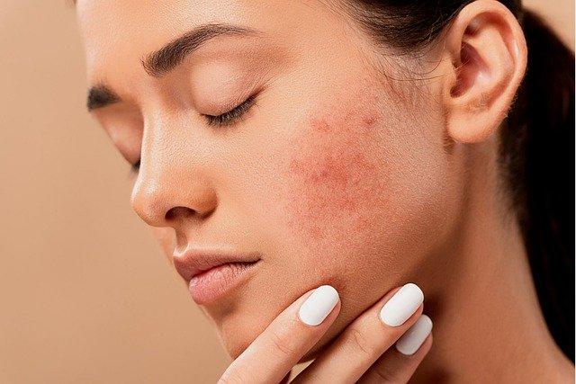L'acné : 3ème cause de taches brunes